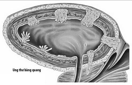 Ung thư bàng quang phát hiện sớm, điều trị nhanh